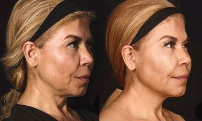 Morpheus8 Before + After